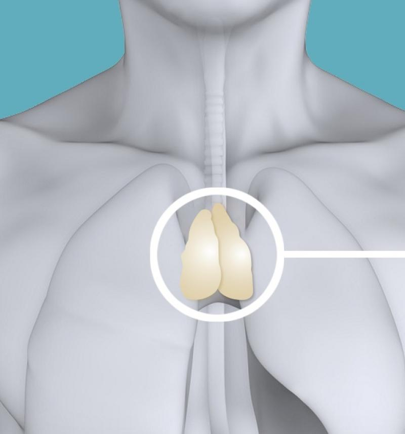 Illustration of a thymus in a human chest courtesy of Navid Marvi.