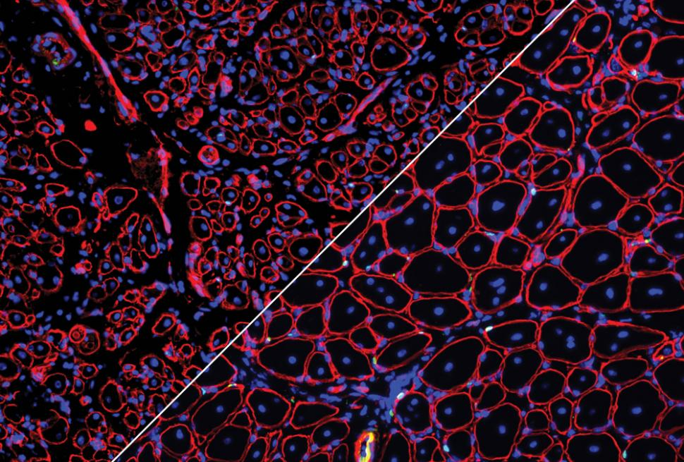 GDNF repairs aged muscle stem cells courtesy of Liangji Li.